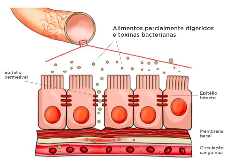 Uso de probióticos no tratamento de enxaquecas